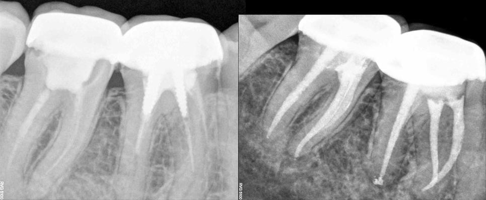 Endodontic retreatment: a conservative and predictable therapy