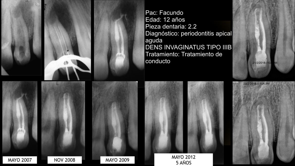 Non-surgical endodontic treatment of a maxillary lateral incisor with dens invaginatus: A case report