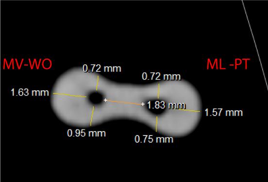 Evaluación con tomografía axial computada de haz cónico de la conformación de conductos mesiales de molares inferiores instrumentados con los sistemas WaveOne y ProTaper Universal. Estudio ex vivo
